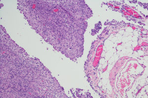 A micrograph of epithelioid cell clusters in a case of peritoneal mesothelioma.