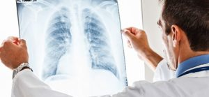 doctor examines chest x-ray